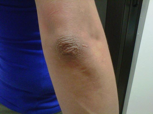 Albiți pielea întunecată pe coate și genunchi în doar 5 minute