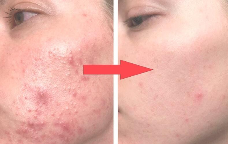 10 Tratamente Naturale Pentru Acnee Chistică