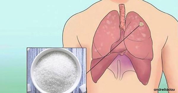 Cu Toții Avem Celule Canceroase În Organism. Iată Cum Să Le Împiedicăm Să Devină Tumori