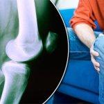 Soluție eficientă pentru artroză, artrită, osteocondroză (rețeta bunicii mele)