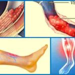 Tratamentul tromboflebitei cu remedii naturiste
