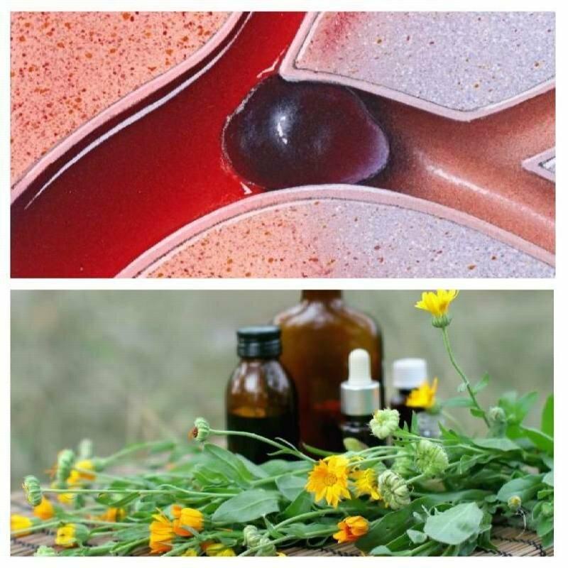 Remedii naturiste eficiente pentru tratamentul trombozei și subțierea sângelui