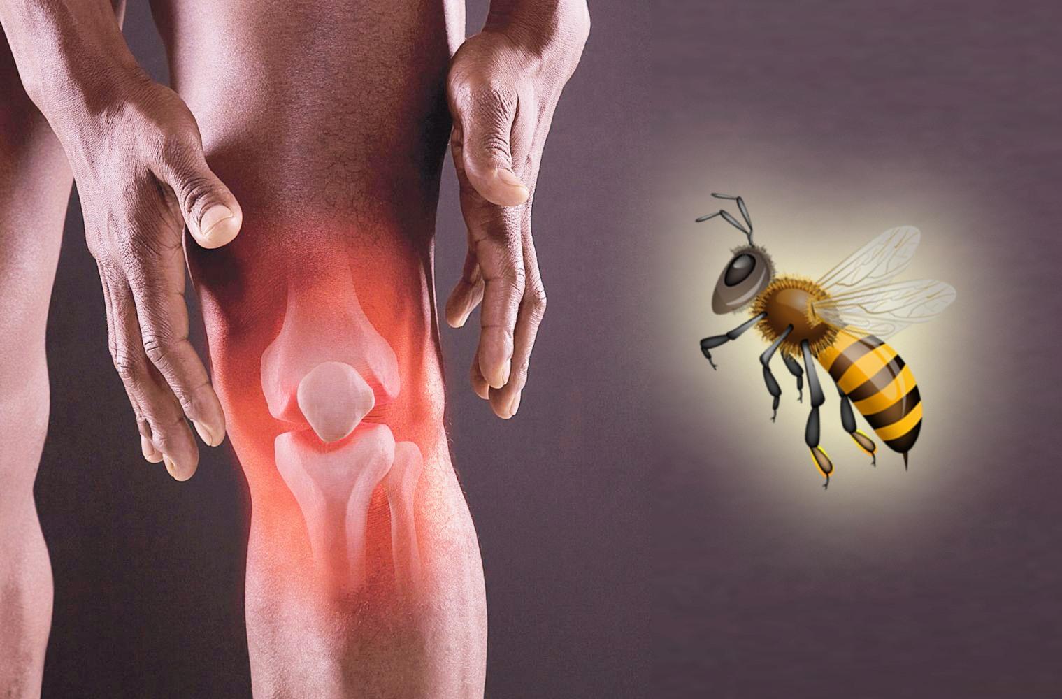 Tratamentul bolilor cu venin de albine / Reumatism, Hipertensiune arterială, Sistemul nervos, Astm Bronsic, Articulații etc.