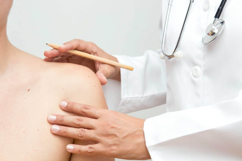 Akne behandling Retouch clinic skønhedsklinik københavn