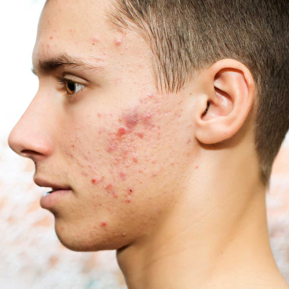 voksen acne behandling