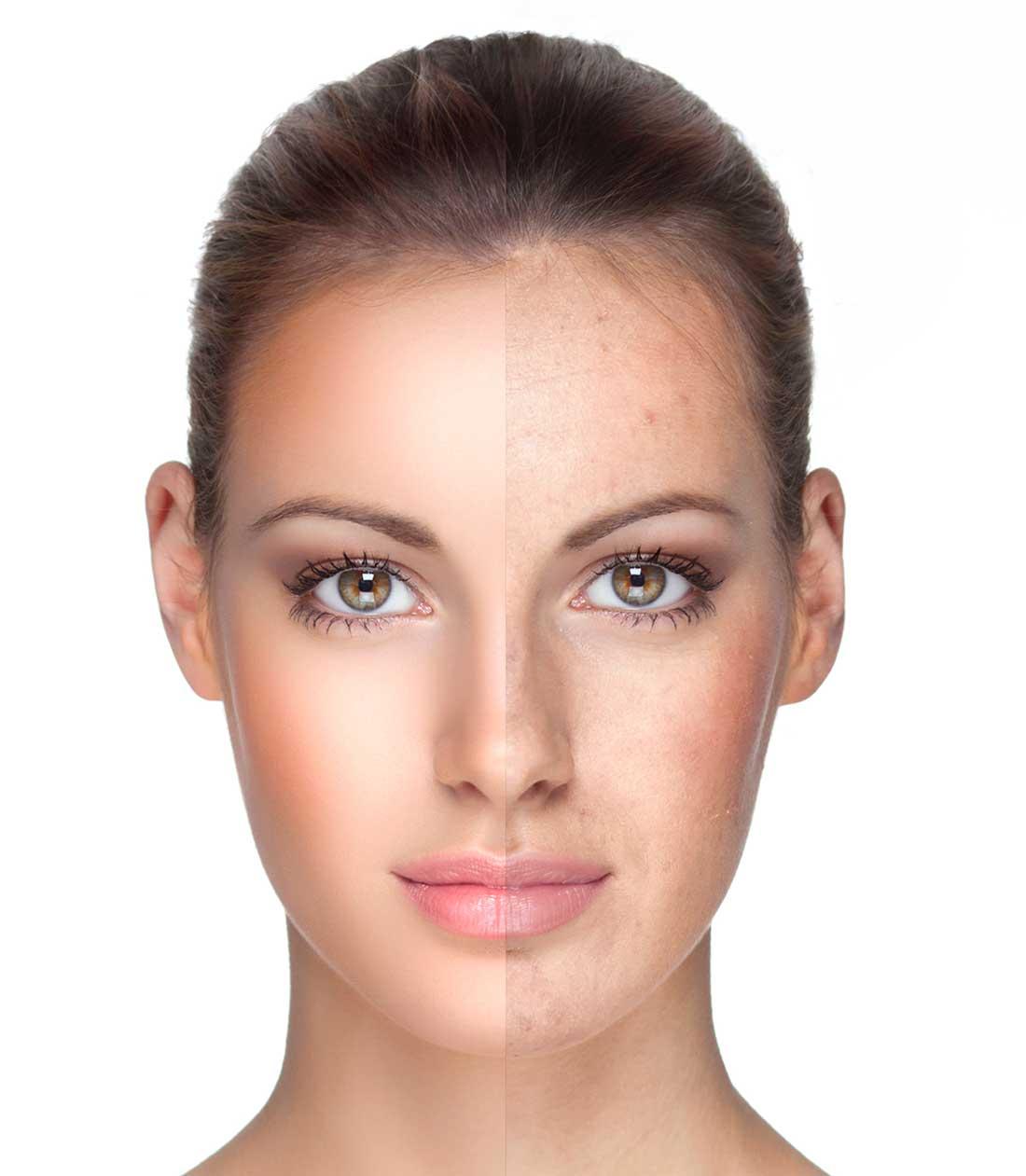 laserbehandling københavn skønhedsklinik