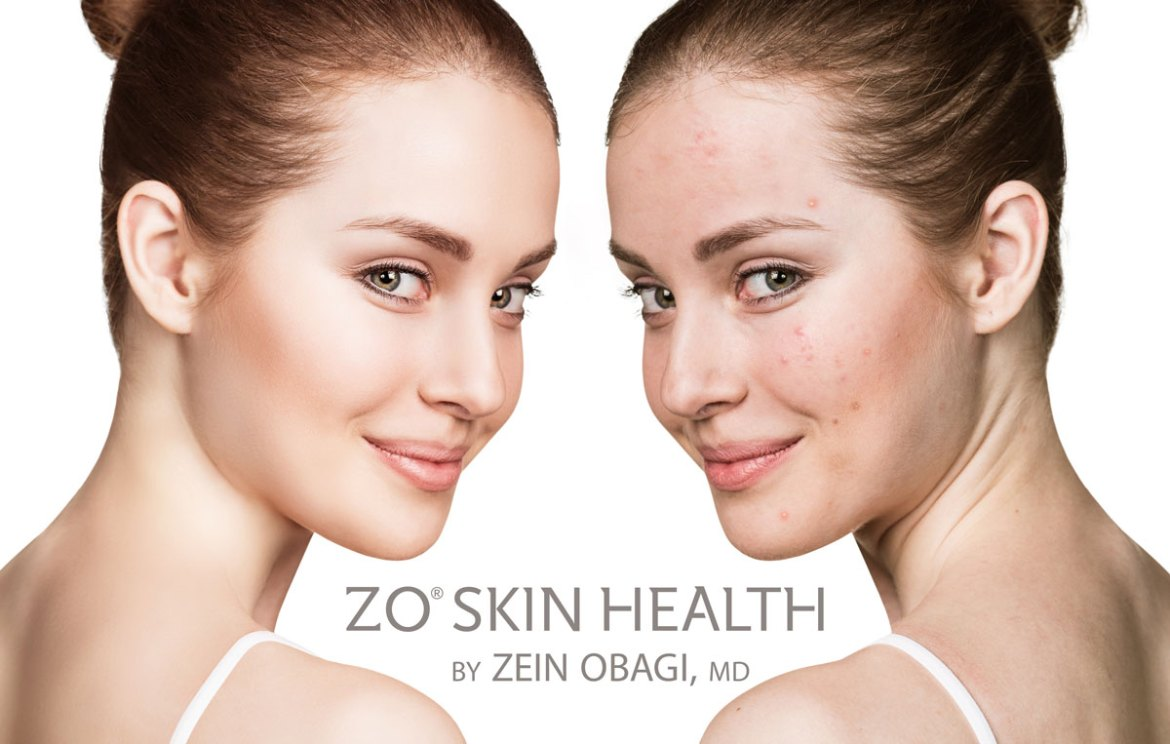 ZO BLEMISH & OIL CONTROL TREATMENT (ANTI-AGING)