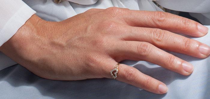 veins in hands
