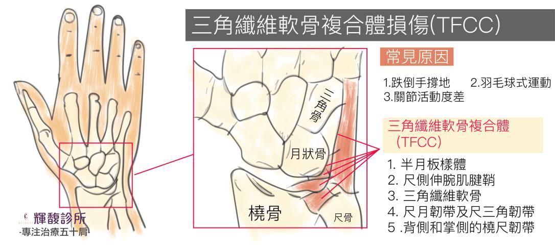 三角纖微軟骨-01.png