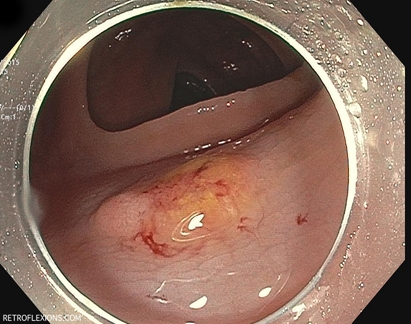 After saline injection the lesion becomes even flatter.