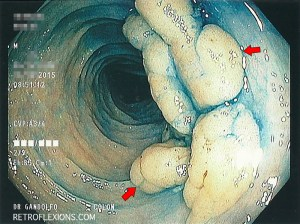 After spraying the lesion with methylene blue dye, the edges of the polyp are more apparent (red arrows show the edges of the lesion).
