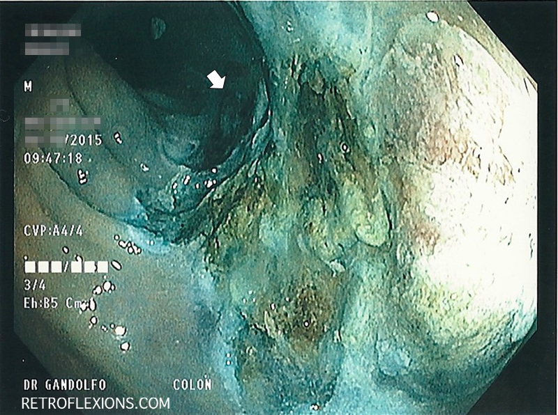 The appearance of the site after removal of the polyp. The white arrow shows the proximal-most edge of the resection.