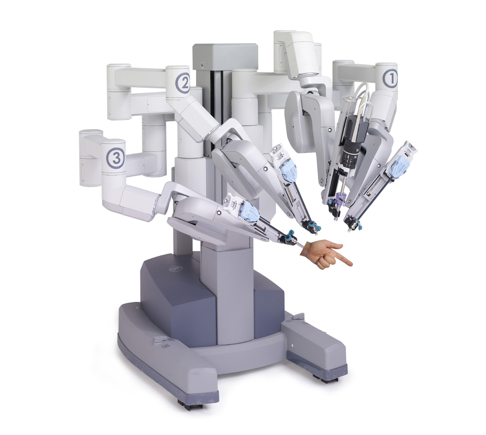 Breaking news: FDA expected to approve di Michelangelo® System for robotic fecal disimpaction.