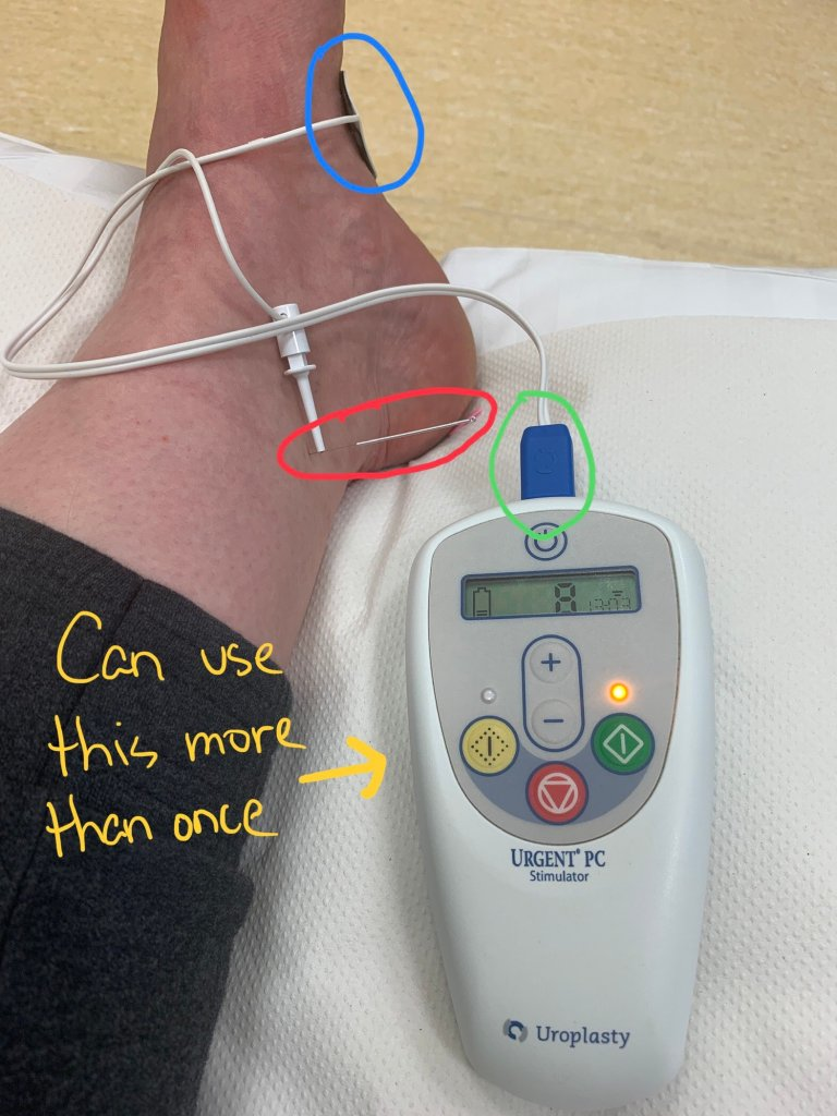 A picture of a medical treatment device called Urgent PC which is an example of unsustainable design and the NHS wasting money. The main device can be reused. But the lead, which is circled in green, can only be used once and if it falls out of the device, a new one has to be used. The lead could be designed so that it can be reused and one only need to attach the alcohol pad (circled in blue) to the lead.