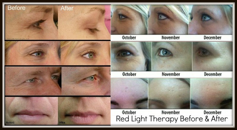 Red LED light therapy before and pictures