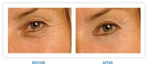 Renu Derma - best eye cream