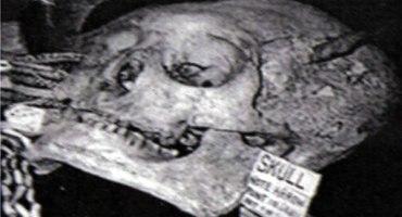 giant_skull