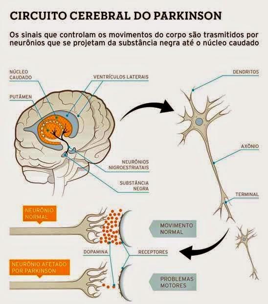 Figura 2 - Circuito Cerebral do Parkinson Os sinais que controlam os movimentos do corpo são transmitidos por neurônios que se projetam da substância negra até o núcleo caudado
