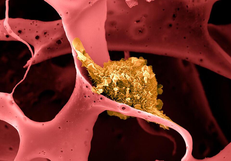 Vaccin împotriva cancerului de sân triplu-negativ