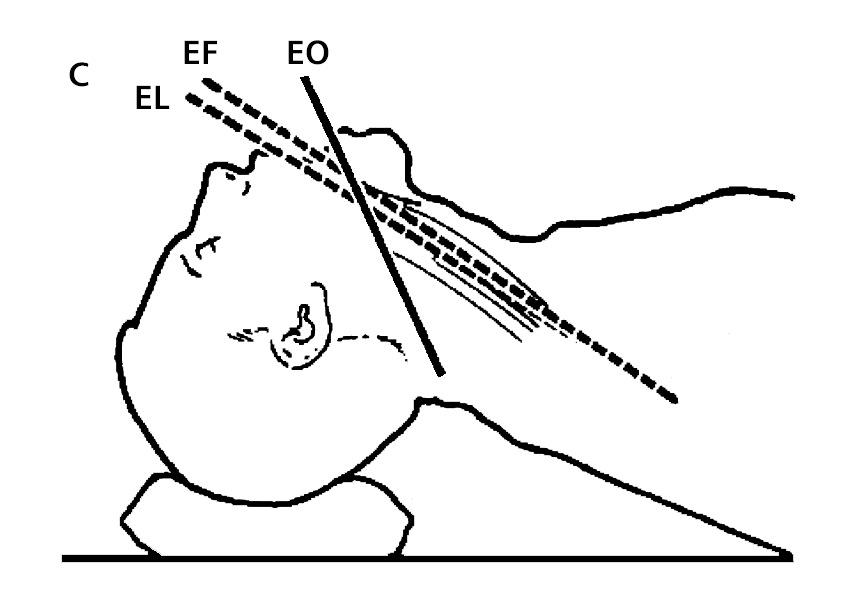Vía aérea en lesión de columna cervical - Revista Chilena de Anestesia