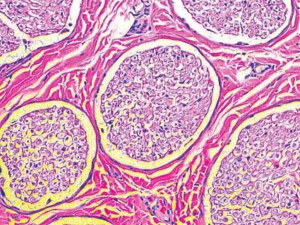 ¿Es reversible el daño del nervio peroneo?