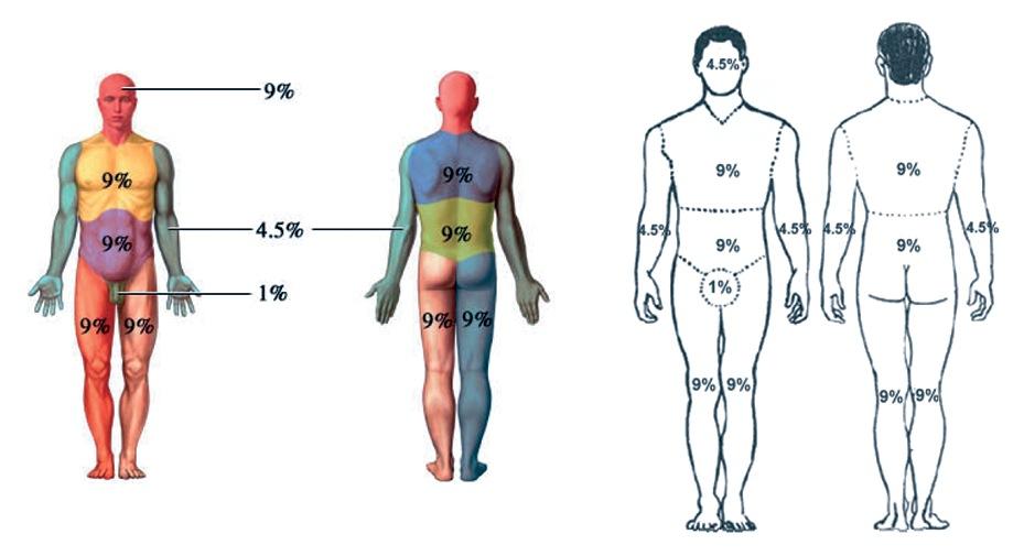 Evaluación preanestésica del paciente gran quemado agudo adulto