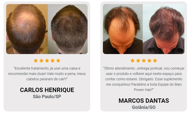 Man Power Hair Depoimento