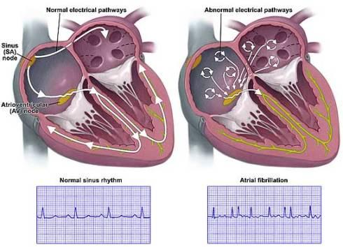 atrial-fibrillation-lg