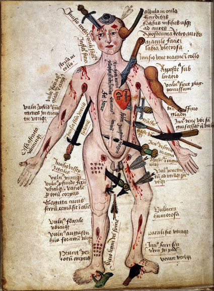 Ilustración del siglo XV que explica cómo sacar dagas y espadas del cuerpo.