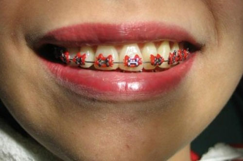 Brackets Hello Kitty