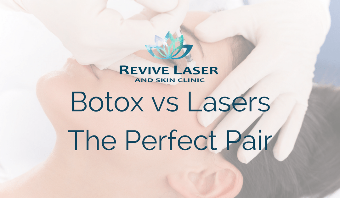 Botox vs Lasers…the perfect pair!