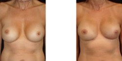 Breast Reconstruction - Nipple Sparing