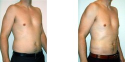 Liposuction - Abdomen and Flanks