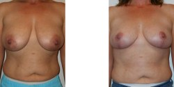 Las Vegas Breast Lift