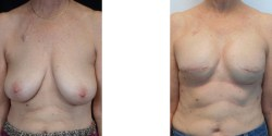 Lasw Vegas Breast Reconstruction