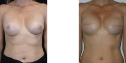 Las Vegas Breast Reconstruction