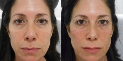 Facial Injectibles and Fillers Las Vegas