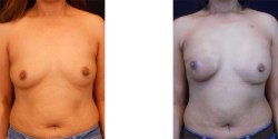 Breast Reconstruction (Radiated Right Breast) *