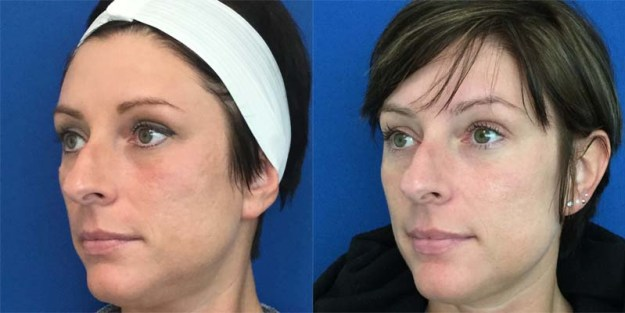 Laser Skin Resurfacing: Face *