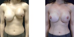 Breast Reconstruction - Lat Flap *