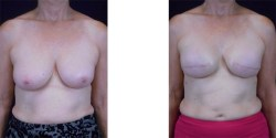 * Breast Reconstruction