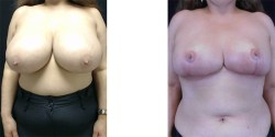 Breast Reduction *