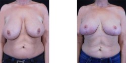 Breast Lift *