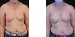 Breast Reconstruction - Nipple Sparing *
