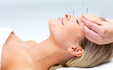 acupuntura-10-beneficios-surpreendentes-para-sua-saude