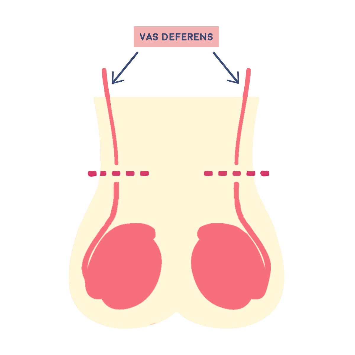 Image of Vas Deferens
