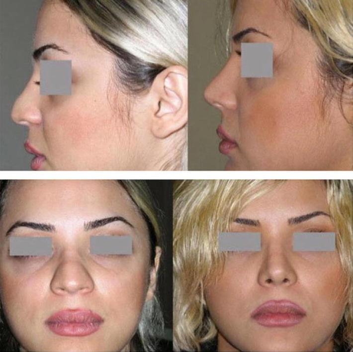 iranian nose plastic surgery before and after (2) » rhinoplasty