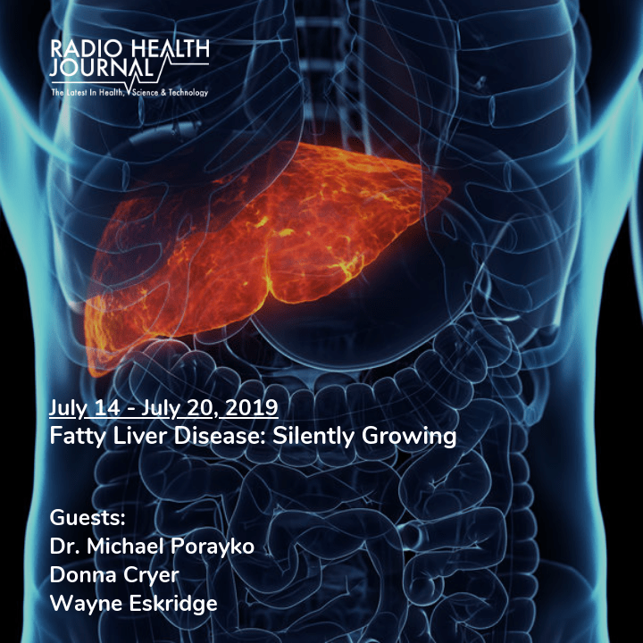 Fatty Liver Disease: Silently Growing