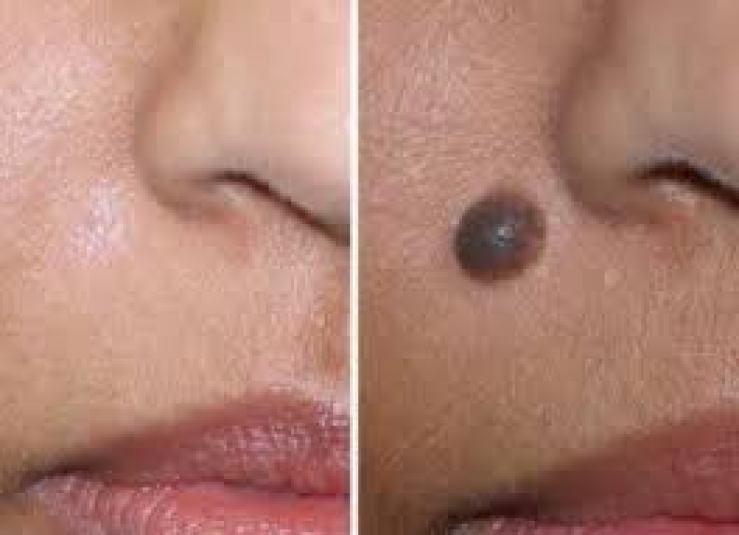 No matter how old the mole or wart is, this home remedy will disappear in one night World Daily News24 - English