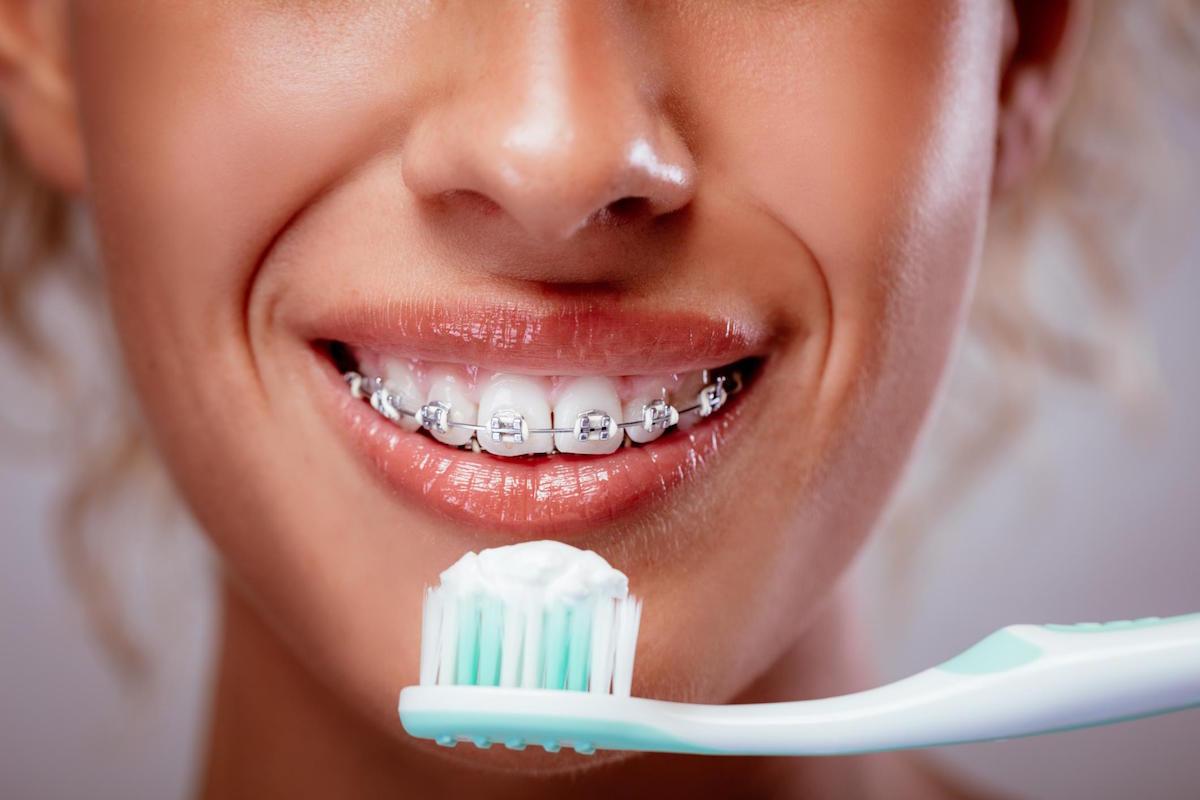 Yeronga Dentist Tips How Can I Keep My Teeth Clean When